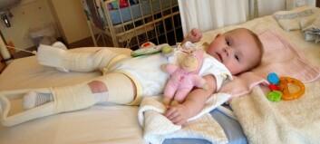 Hofteleddsdysplasi: Mina (6 mnd) måtte ligge en uke i strekkbehandling