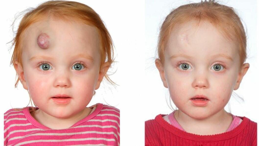 FORSVINNER HOS DE FLESTE: Denne jenta gjennomgikk den nye behandlingsmetoden på Aarhus Universitetshospital.  Foto: Aarhus Universitetshospital
