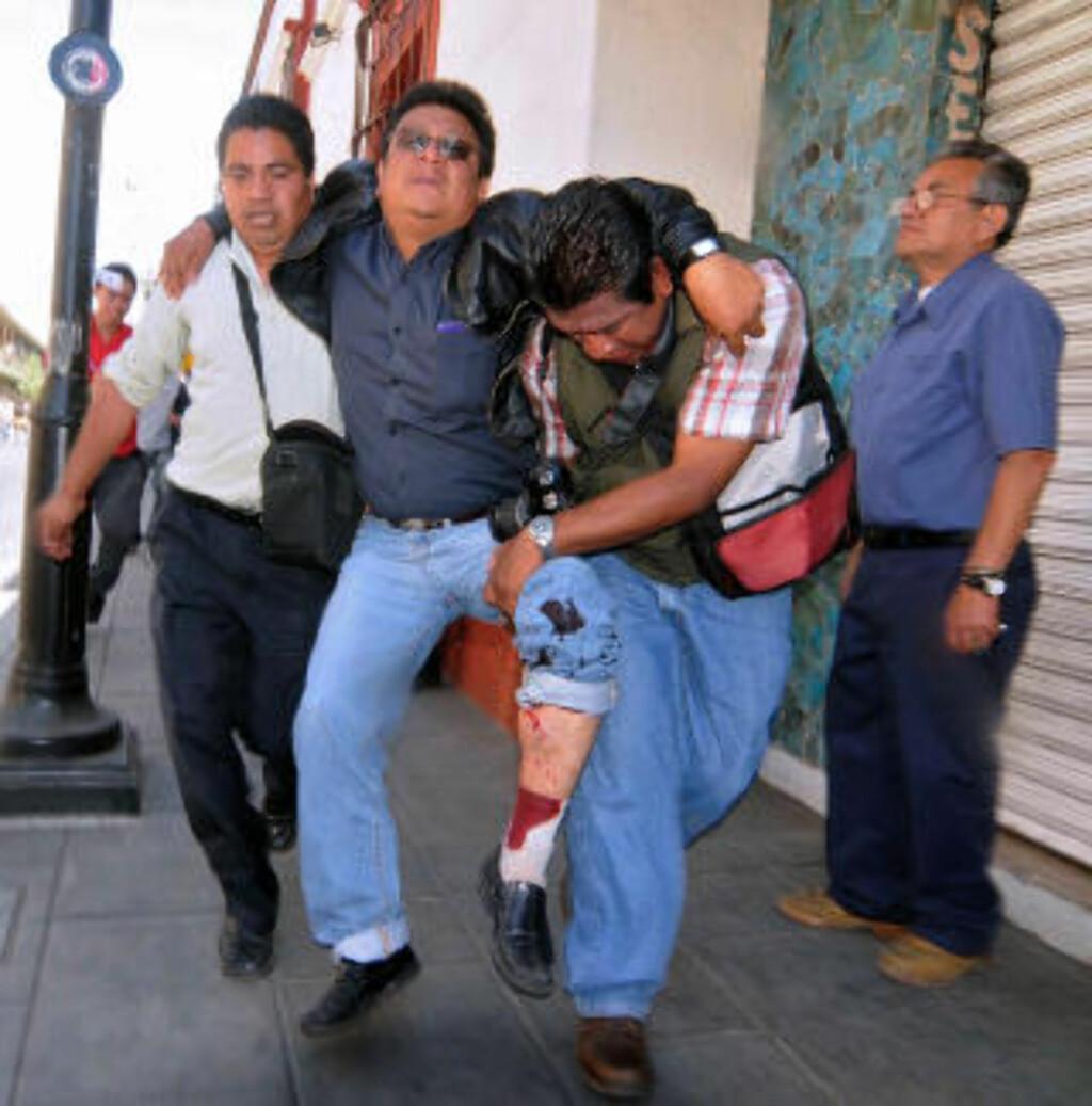 SKUTT MED SKARPT: Den meksikanske radio-journalisten Gildardo Mota blir hjulpet unna etter å ha blitt skutt i foten. Foto: AFP/Dario Nolasco/Scanpix
