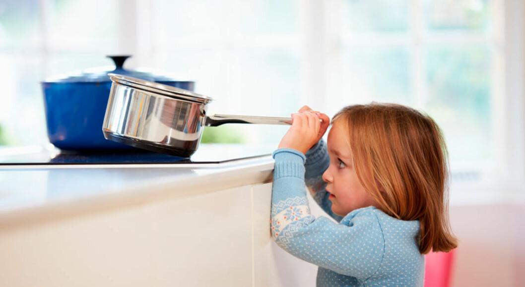 SKÅLDESKADER: Vanlig og alvorlig brannskade hos barn.  Foto: Shutterstock ©