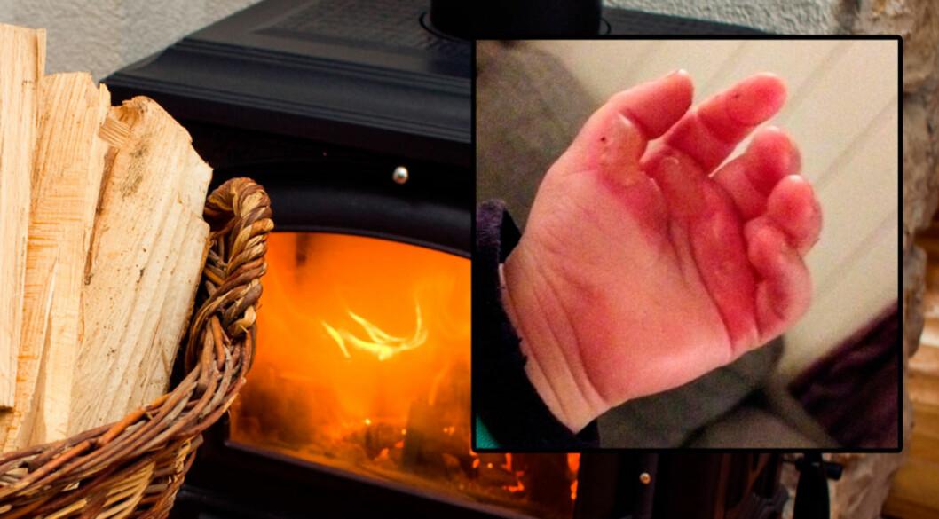 <b>HER GIKK DET HELT GALT:</b> Gutten på 14 måneder fikk brannskade på hånden da han tok på den glohete vedovnen. Foto: Shutterstock © Innfelt: privat