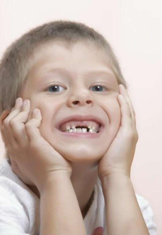 TANNFELLING: Mange velger å ta vare på tennene. Foto: Colourbox