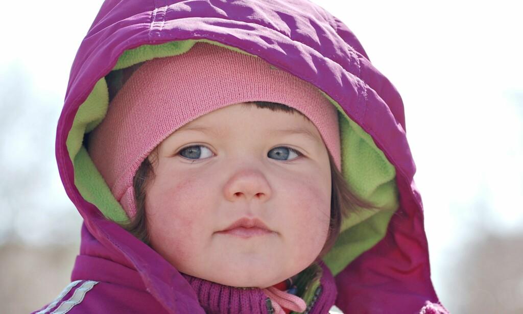 KALDE OG SÅRE KINN: Er det egentlig noe poeng i å bruke kuldekrem på små barn? Foto: NTB Scanpix