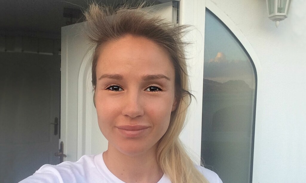 28d90390 Rachel Nordtømme: - Hjelp, jeg har fått piggsveis! - KK