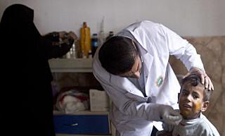 BRENT: En liten gutt får behandling mot skader i huden etter å ha blitt utsatt for svovel. Foto: Marko Drobnjakovic/AP