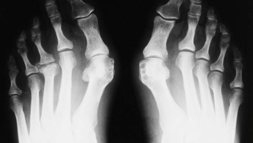 AU: Røntgen av føtter med Hallux valgus - en feilstilling av stortåen slik at den vries i retning lilletåen.Trange sko med høye hæler er en viktig årsak til tilstanden.  FOTO: Thinkstockphoto