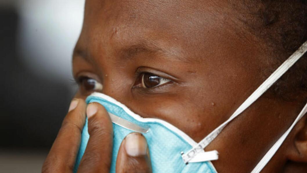 <strong>RESIDENTE:</strong> De første tilfellene av tuberkulose som er resistent mot alle typer medikamenter, ble oppdaget i Sør-Afrika. Foto: Schalk van Zuydam / Scanpix