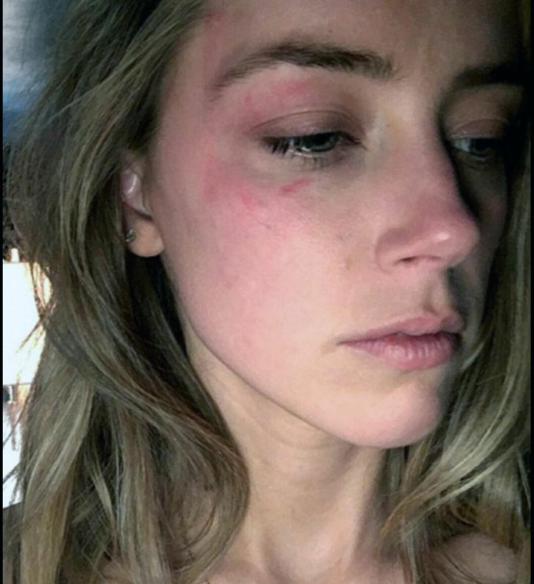 I HARDT VÆR: I slutten av mai offentliggjorde Amber Heard bilder av seg selv med skader hun hevdet var påført av Depp. Kilder nær Depp har avvist Heards anklager som forkastelige og usanne. Foto: Splash News