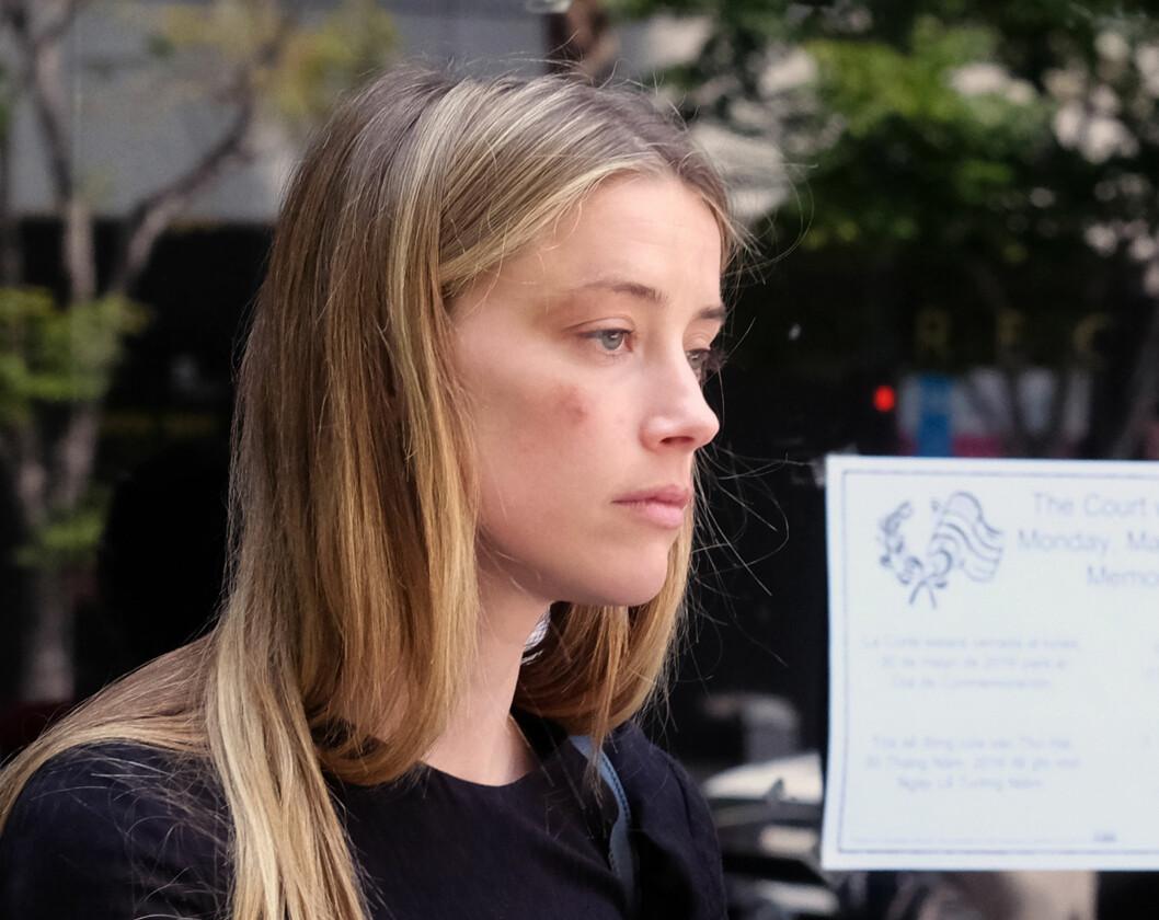 FORSLÅTT: Amber Heard dukket opp i retten med en blåveis som hun hevdet var et resultat av Johnny Depps fysiske mishandling. Foto: Ap