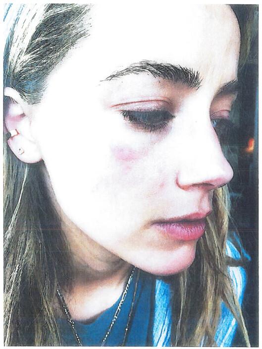 TOK BILDE AV SKADENE: Amber har selv delt bilder av det hun mener er skader Johnny Depp har påført henne. Depp avviser anklagene. Foto: Reuters