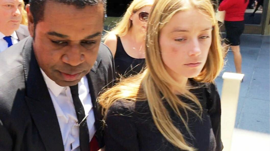 SKADET: Amber Heard var tydelig preget av situasjonen etter et et rettsmøte fredag. Skadene hun hevder Johnny Depp har påført henne var tydelig på høyre side av ansiktet.  Foto: Reuters