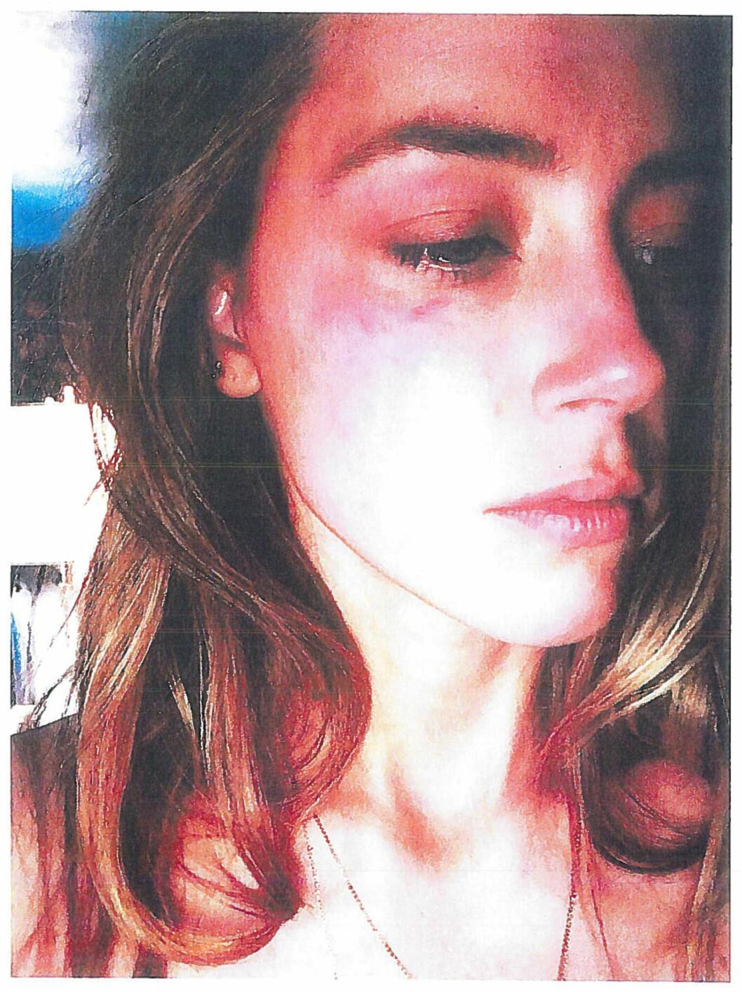 MANGE ÅRS MISBRUK: Amber hevder ektemannen var voldelig ved flere anledninger over de fire årene de var sammen. Hun hevder også at Depp sliter med store rusproblemer og ofte glemmer hva han har gjort i påvirket tilstand.  Foto: Reuters