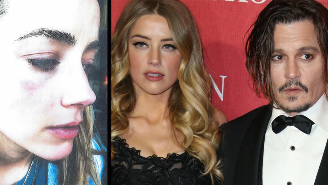 FORSLÅTT: Amber Heard hevder Johnny Depp i en årrekke har misbrukt henne og la frem bildet til venstre i retten.  Foto: Scanpix