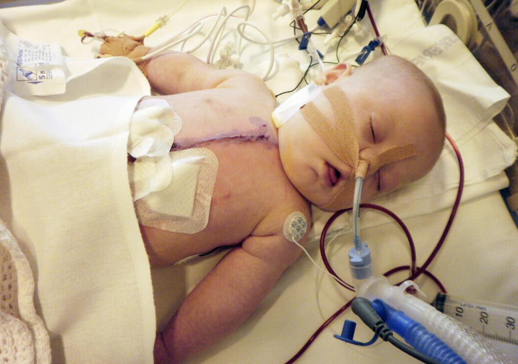 <strong>HJERTEOPERERT:</strong>  Pia ble født med hjertefeilen Fallots Tetrade. Hun var bare tre måneder gammel da hun ble hjerteoperert i seks timer. Foto: PRIVAT/SE OG HØR