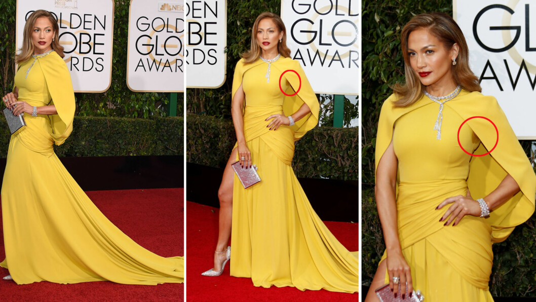 STJERNE-SVETTE: På Golden Globe Awards natt til mandag beviste superstjernen Jennifer Lopez at selv verdens største celebriteter svetter ved store anledninger. Daily Mail mener at de uheldige svetteringene stjal alt fokus fra den glamorøse kjolen hennes. Foto: NTB Scanpix
