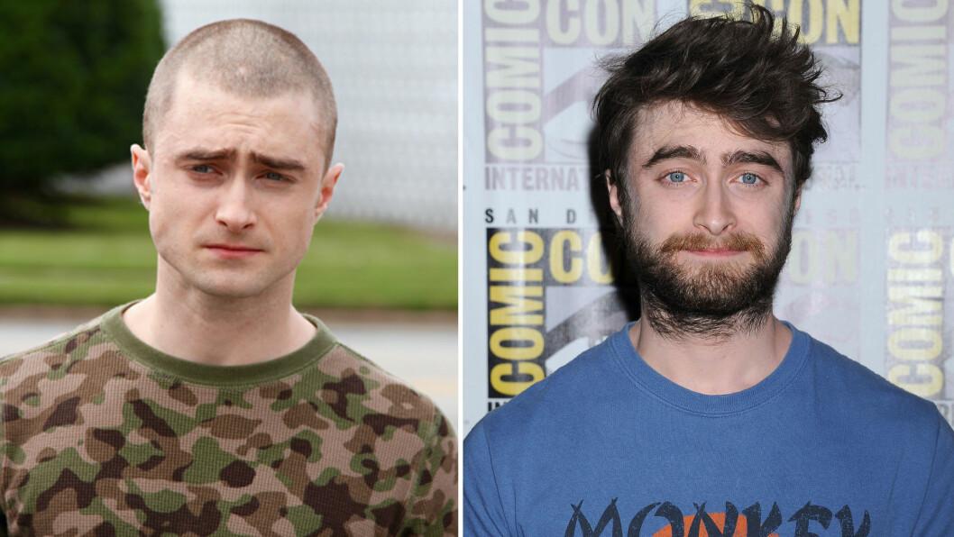 TOTALFORVANDLING: Daniel Radcliffe har kvittet seg med både hår og skjegg for sin nye filmrolle. Foto: Scanpix, skjermdump fra Facebook