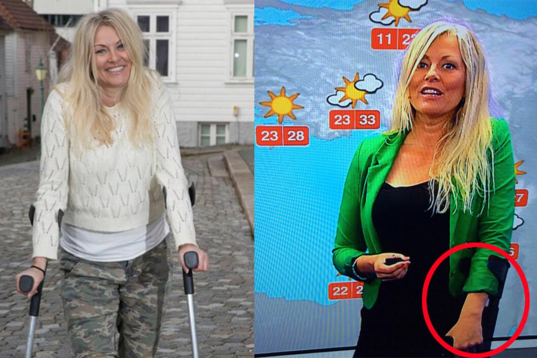 STADIG KRYKKER: De siste månedene har krykkene vært ELi Karis faste følgesvenn, både privat og på jobb. Nå gleder hun seg til snart å kaste krykkene.  Foto: Se og Hør/ Skjermdump TV 2