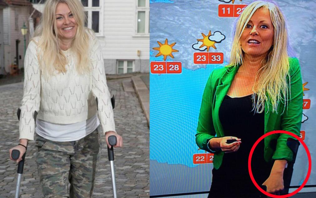 PÅ KRYKKER: Etter skiulykken i mars har Eli Kari Gjengedal vært avhengig av krykker. For to uker siden opererte hun inn nytt korsbånd, og denne uken stilte hun med krykke da hun presenterte værmeldingen på TV 2. Foto: Se og Hør / Skjermdump TV 2