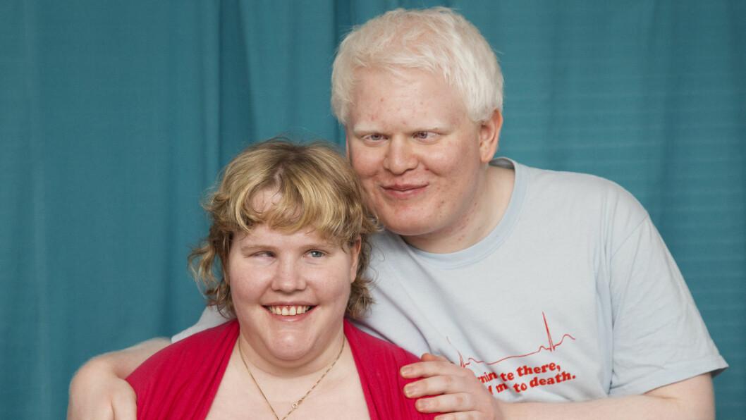 """KJÆRESTER: Lise Bakkan og Magnus Kroken traff hverandre på datatreffet """"The Gathering"""". Han er født med albinisme, og er svaksynt. Hun er blind. Foto: ERLEND HAUKLAND/SE OG HØR"""
