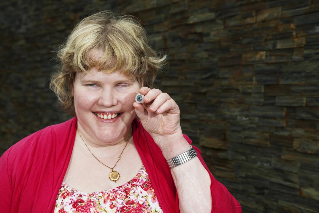 ØYEPROTESE: Lise Bakkan måtte fjerne det ene øyet, og er i dag helt blind. Her viser hun frem den livaktige protesen hun bruker på øyet som er fjernet.