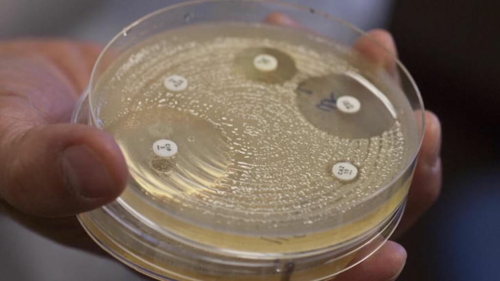 ØKNING DE SISTE ÅRENE: Såkalte ESBL-bakterier er vanskelige å behandle med antibiotika i tablettform. På Aker sykehus ble det identifisert 450 tilfeller i fjor. Foto: Torbjørn Berg / Dagbladet