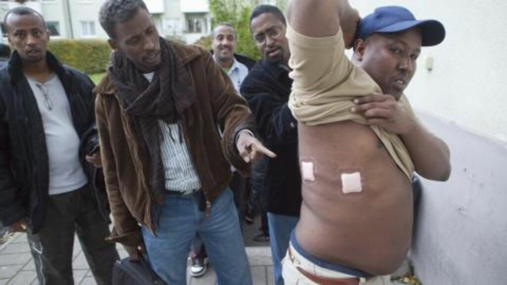 FORSØKT DREPT: Somaliske Bose Hassan ble beskutt da han sto på en bussholdeplass i Malmö i oktober. Kula gikk igjennom kroppen hans uten å treffe vitale organer. Foto: Expressen