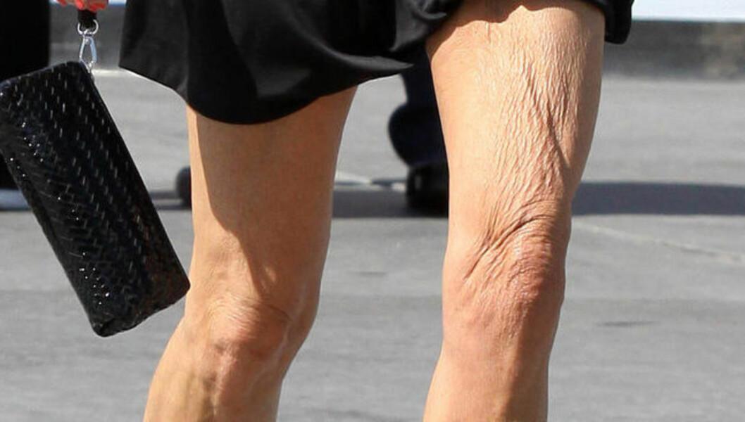 RYNKER: Da Dickinson ankom American Idol-settet onsdag, så benene hennes slik ut. Foto: FameFlynet