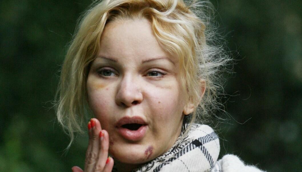 OPERERT ISTYKKER: Alicia Douvall har operert seg mer enn 50 ganger. Hun hevder hun hadde sex elleve ganger på én natt med Simon Cowell. Foto: Stella Pictures