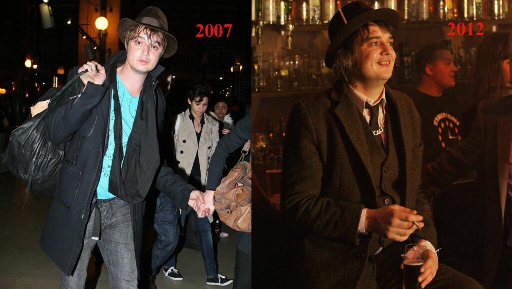 OPP I VEKT: Pete Doherty har lagt på seg mange kilo etter at han ble rusfri.  Foto: All Over Press/Stella Pictures