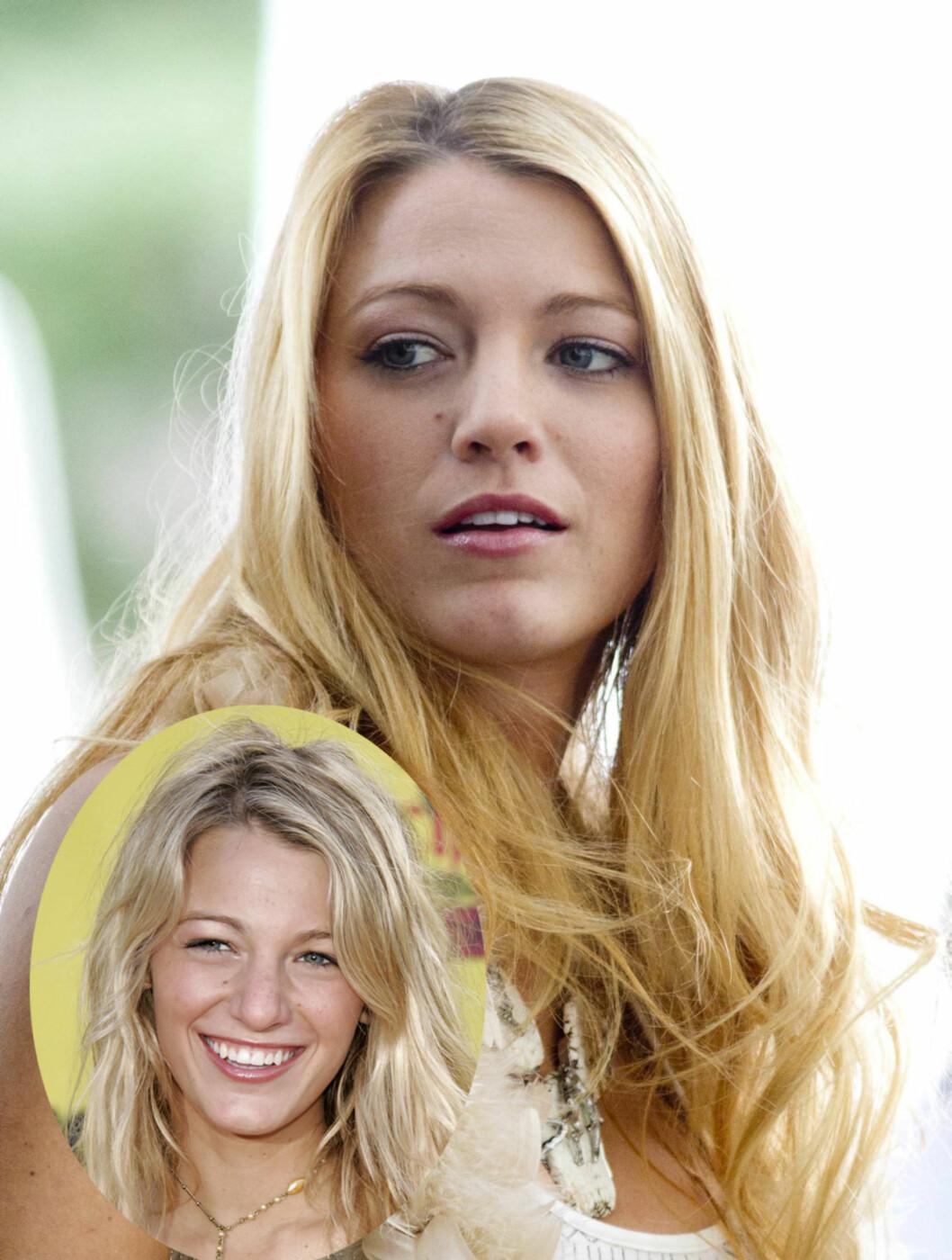 <strong>TYNNERE:</strong> Blake Livelys nese har blitt tynnere siden hun var med på Teen Choice Award i 2005.  Foto: All Over Press/Stella Pictures