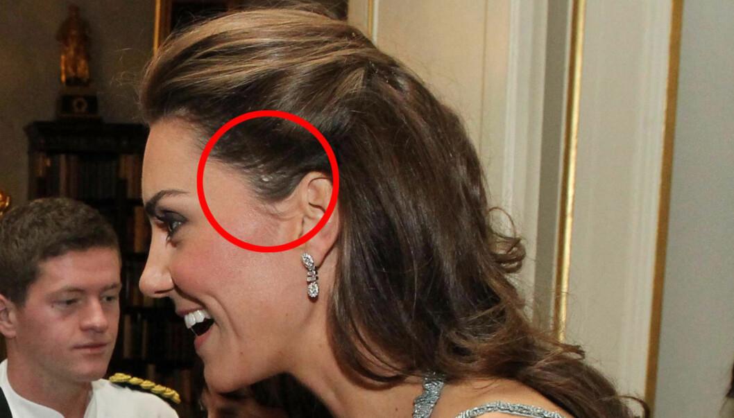 BARNDOMSARR: En ørliten feil med håret til Catherine, avslørte en til nå ukjent hemmelighet om hennes operasjon som liten.  Foto: All Over Press