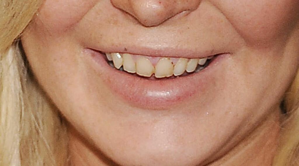 DÅRLIG STELT: Det var lite som minnet om en Hollywood-stjerne da Lindsay Lohan smilte til fotografene onsdag kveld. Foto: Stella Pictures