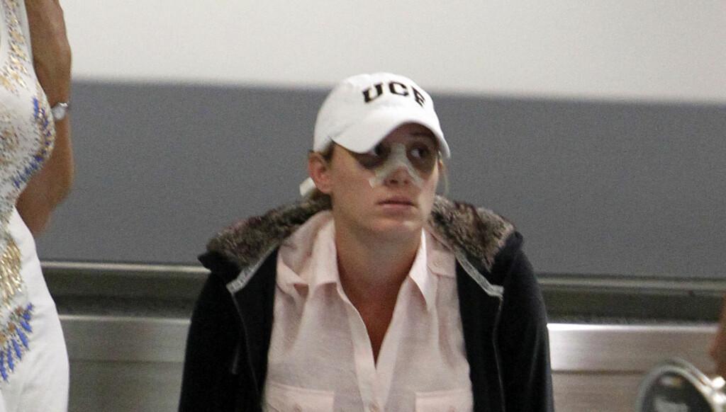 NYOPERERT: Forrige torsdag ble Vienna Girardi avbildet med bandasje i ansiktet på flyplassen i Texas. Det hadde da gått få dager etter neseoperasjonen.  Foto: All Over Press