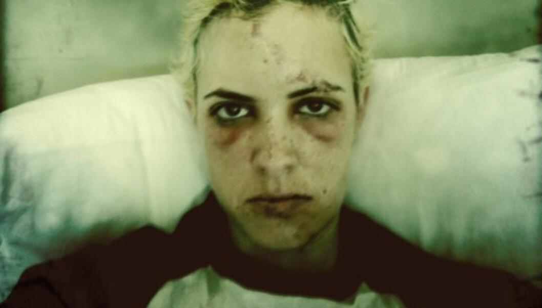 <strong>MÅTTE SY:</strong> Kjendis-DJ Samantha Ronson måtte sy syv sting i fjeset etter at hun ble kastet av sykkelen i en ulykke i Los Angeles 11. april. Foto: Twitterpic