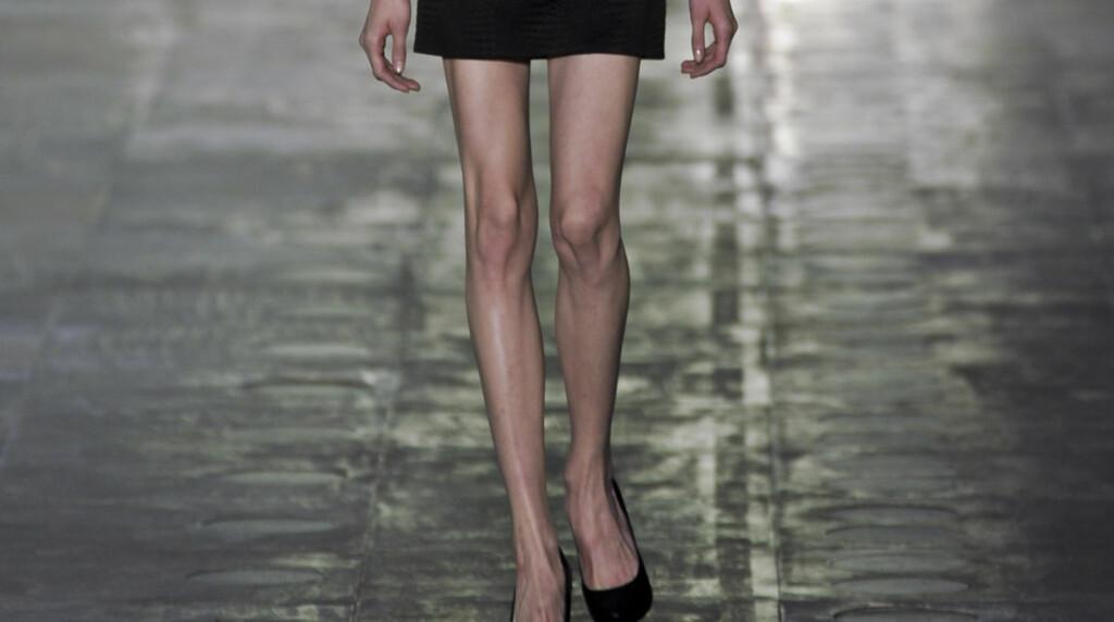 SJOKKTYNN: Under London Fashion Week denne uken var mange av modellene svært tynne. Her under merket East sitt moteshow.  Foto: Stella Pictures
