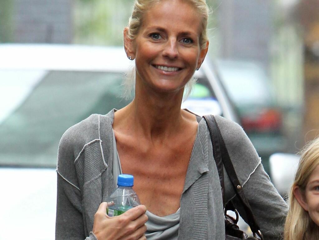 STERKE SMERTER: Jonsson hevder kroniske ryggsmerter fikk henne til å miste appetitten. Foto: All Over Press