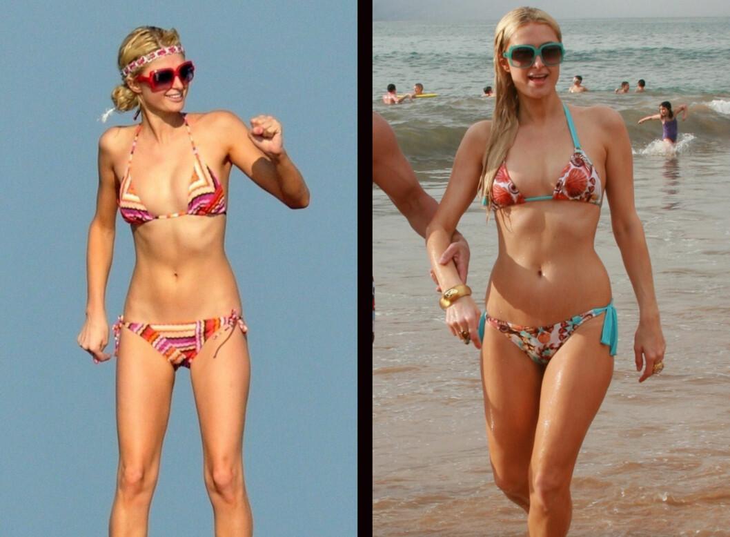 <strong>FØR OG NÅ:</strong> Paris Hilton er kjent for å være syltynn, men nå har hun lagt på seg noen sunne kilo ekstra.