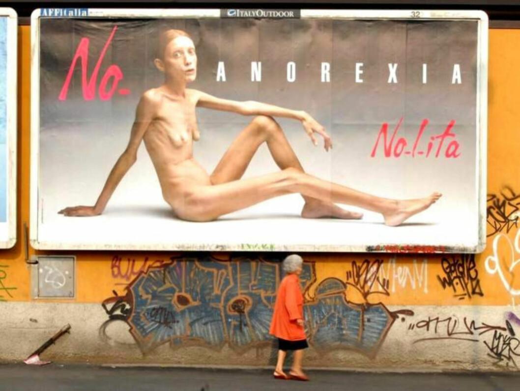 SJOKK-BOARDREKLAME: Isabelle Caro ble selve symbolet på anoreksi i modellbransjen, da hun stilte opp i denne kampanjen i 2007. Foto: Stella Pictures