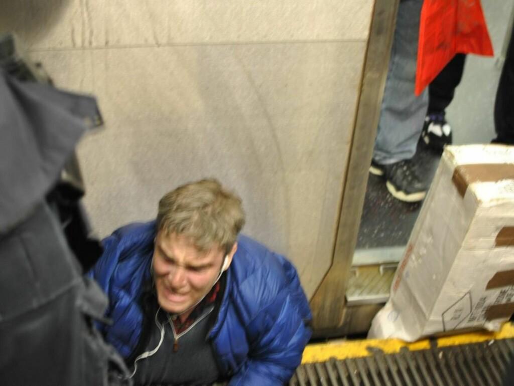 SKREK UT I SMERTE: Skuespilleren Michael Dion ble fanget i klem mellom en t-bane vogn og perrongen fredag. Først etter 30 minutter ble han reddet. Foto: All Over Press