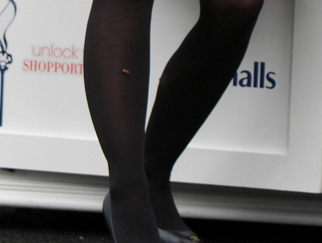 VILLE IKKE DRA: Kristen Bell ble angrepet av en sint bie - som nektet å flytte på seg fra benet hennes, skriver InfaDaily. Foto: Stella Pictures