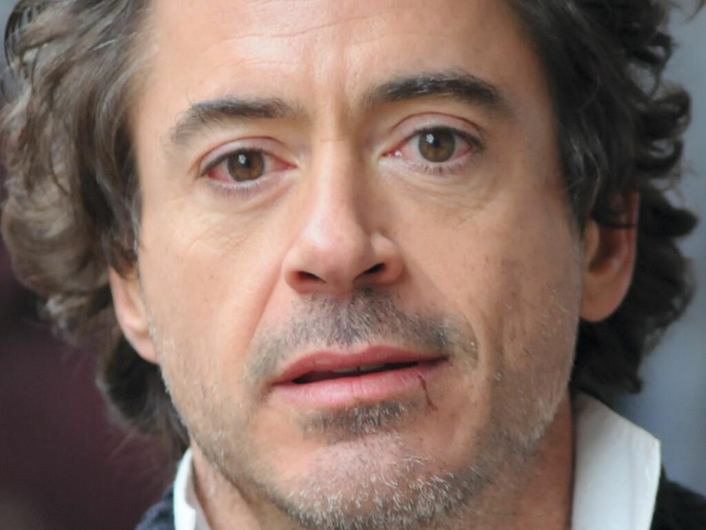 FIKK EN PÅ TRYNET: Hollywood-stjernen Robert Downey Jr. måtte sy seks sting i leppen etter et uhell på filmsettet. Foto: All Over Press