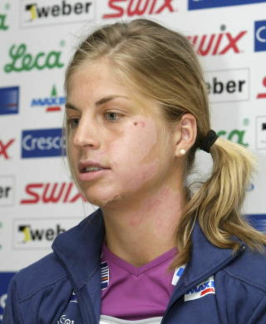 LANG VEI TILBAKE: OL var det siste Astrid Uhrenholdt Jacobsen tenkte på da hun møtte pressen i august, en stund etter at hun hadde skadet seg stygt på sykkelen.  Foto: Terje Bendiksby / SCANPIX .