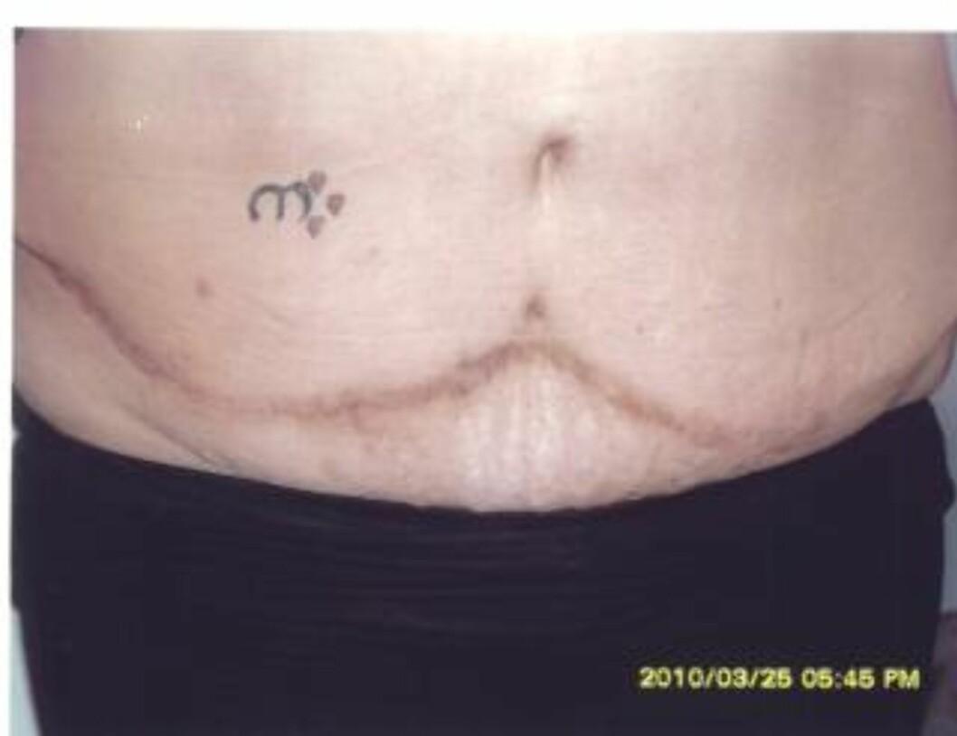 MAGEPLASTIKK: Carina (35) ville fikse på magen etter et mislykket keisersnitt, men det ble bare verre. Foto: Privat