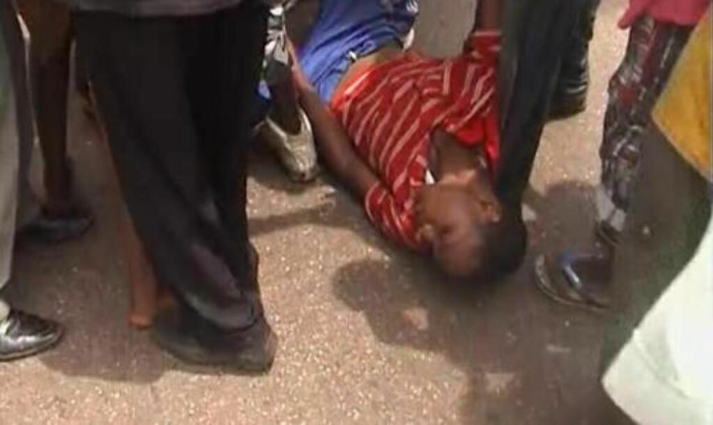 SKADD: Denne demonstranten var en av de hardt skadde etter sammenstøtet med militærjuntaen i får. Foto: REUTERS/Reuters TV
