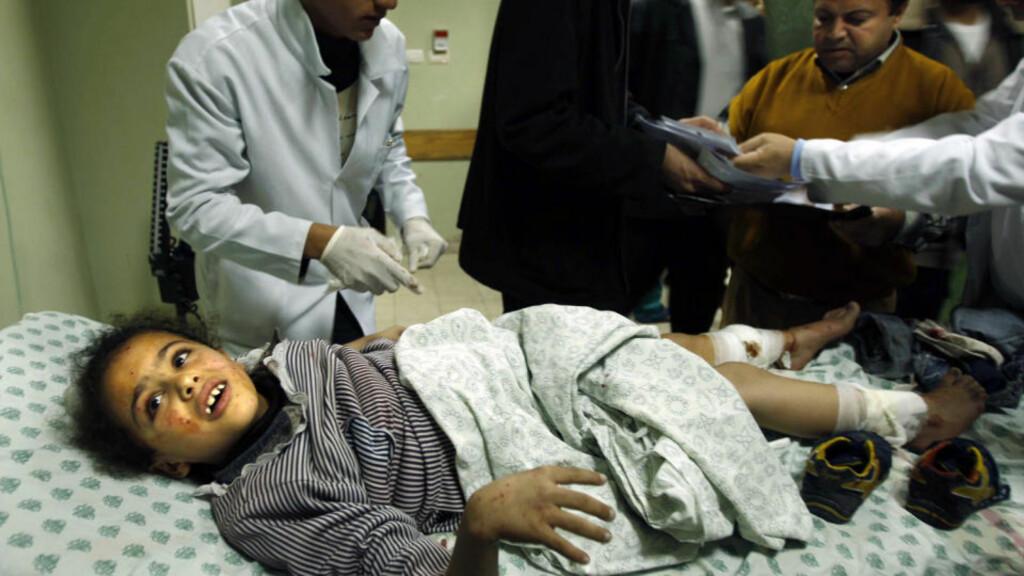MANGE BARN: En skadd palestinsk jente får behandling ved Nasser-sykehuset. Det store antallet barn som ble drept og skadd under Gaza-krigen noe av det som overrasket granskerne mest. Foto: REUTERS/Ibraheem Abu Mustafa/SCANPIX