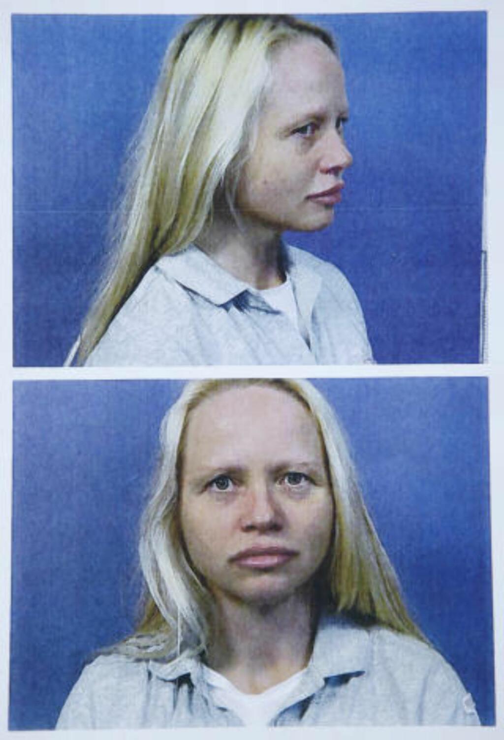FØR OPERASJONEN: Slik så Laila Bergsli ut før operasjonen. Foto: Steinar Buholm