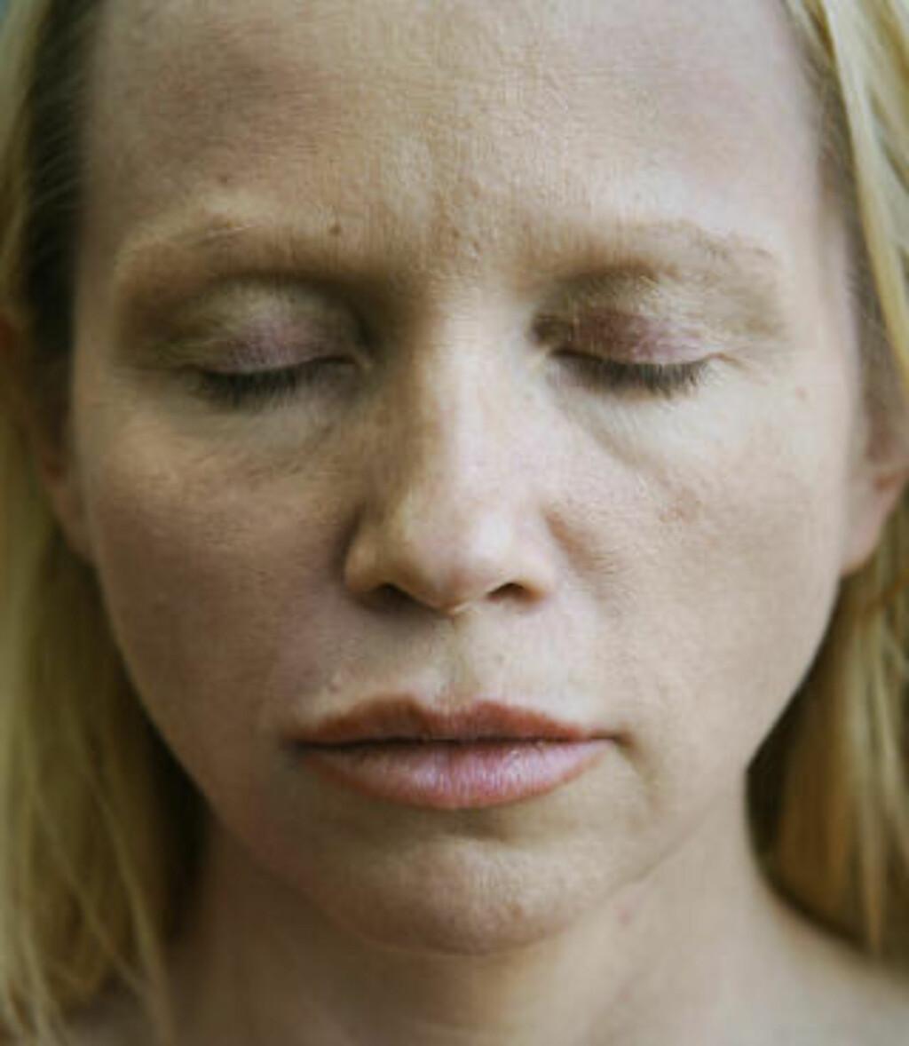 MÅTTE GÅ MED SOLBRILLER: Laila Bergsli sier hun har fått store mengder rynker og løs hud på øyelokkene etter operasjonen. Foto: Steinar Buholm/Dagbladet