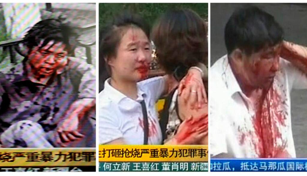 BLODIG: Dette er bildene som har gått ut til bildebyråene og på kinesisk fjernsyn. Bilder av skadde hankinesere under søndagens sammenstøt i Xinjiang. Foto: AFP/REUTERS/CCTV/SCANPIX
