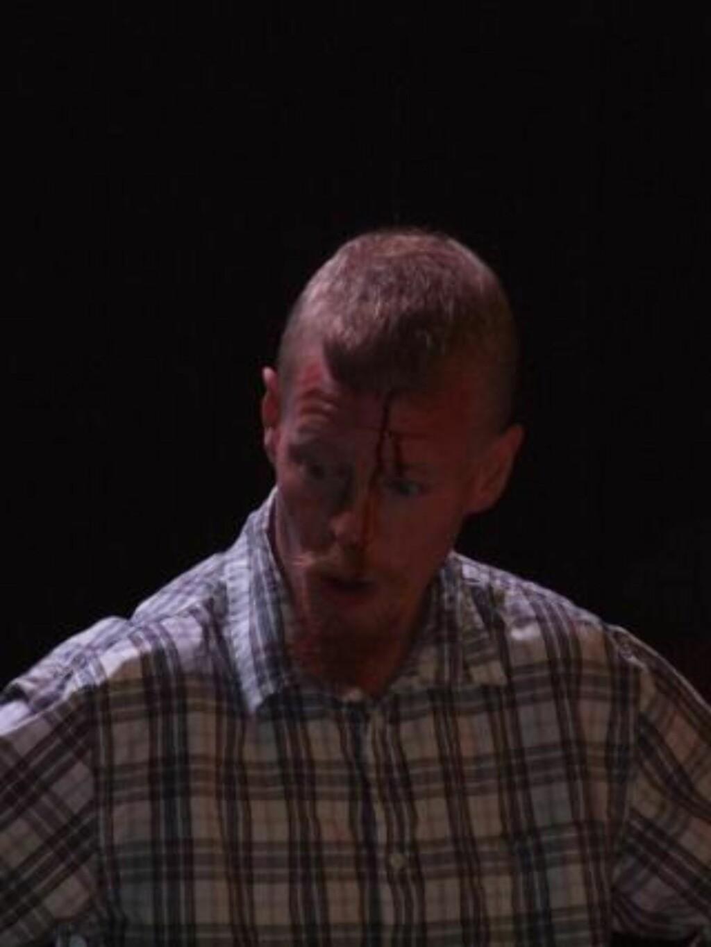 FORLOT DEBATTEN: Øyvind Heian forlot debatten med et blodig kutt i panna. Foto: CHRISTIAN HØYBØ