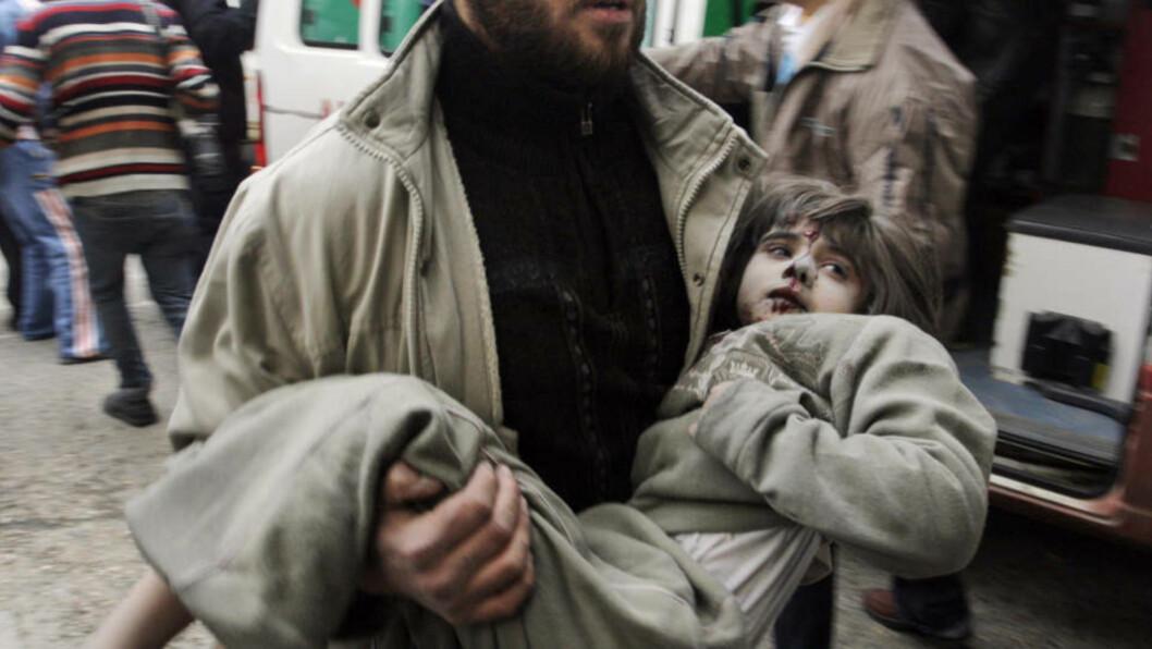 <strong>TIL SYKEHUS:</strong>  Denne lille jenta er på vei til sykehus i Gaza etter å ha blitt såret. Men om hun får den hjelpen hun trenger er tvilsomt. Foto: AP/SCANPIX